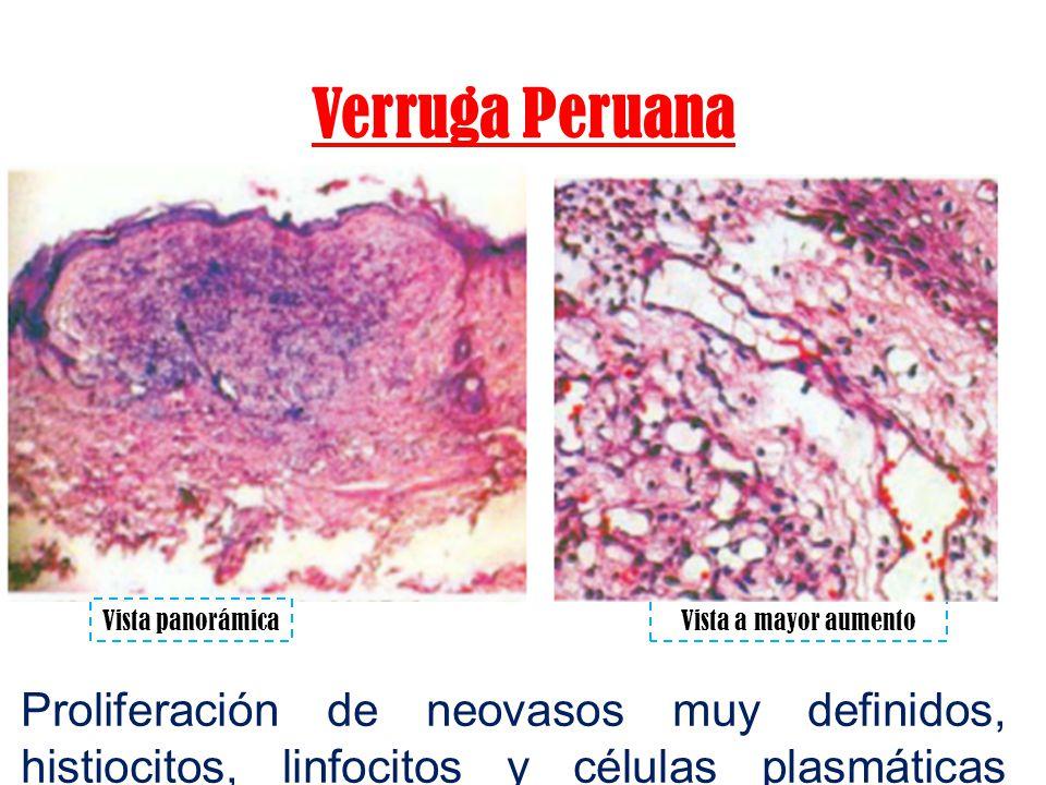 Verruga Peruana Vista panorámica. Vista a mayor aumento.