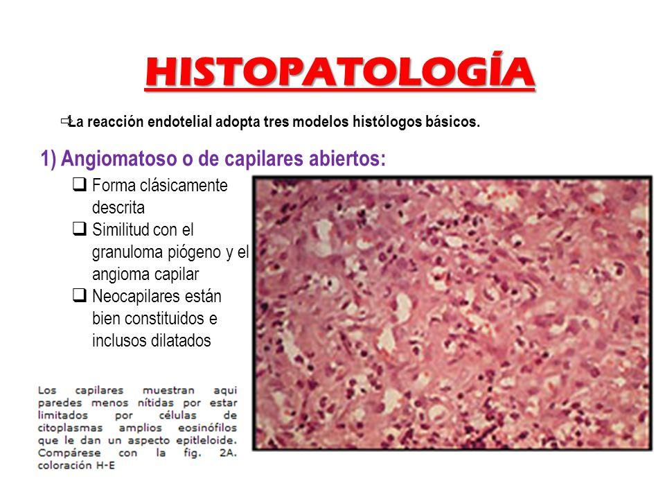 HISTOPATOLOGÍA 1) Angiomatoso o de capilares abiertos: