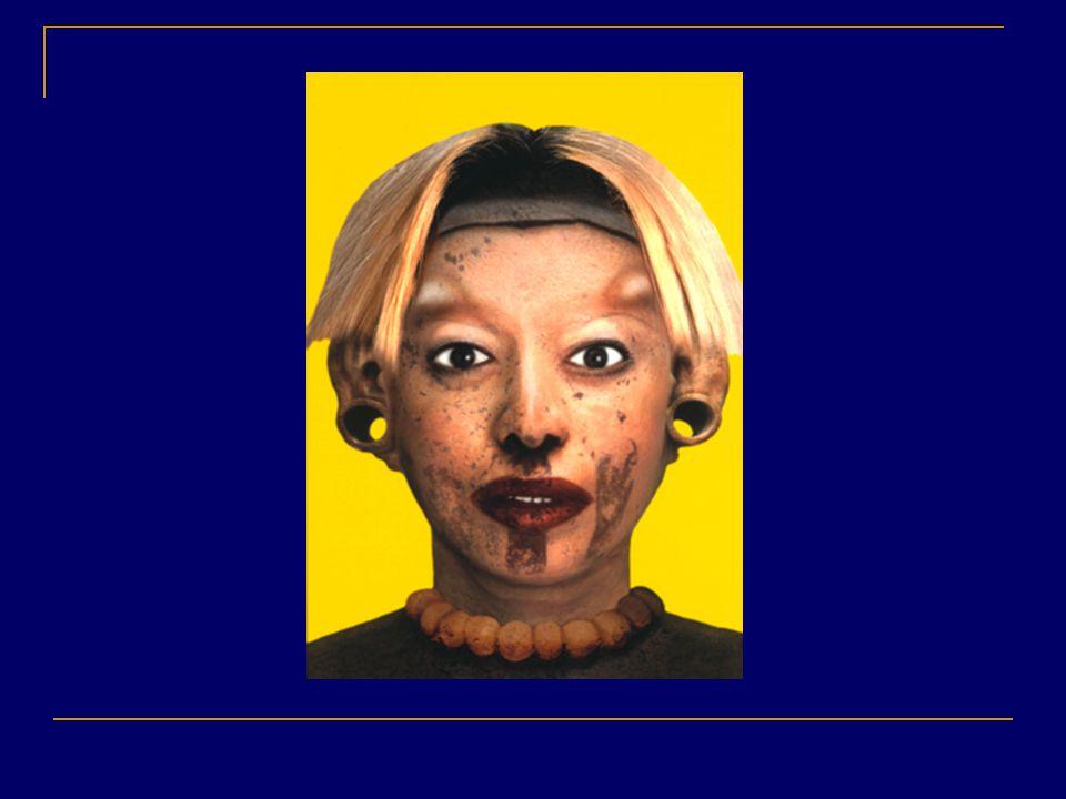 Orlan Refiguration, 1999