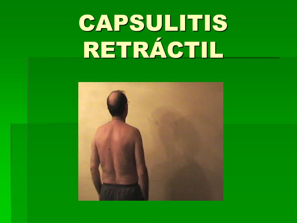 CAPSULITIS RETRÁCTIL