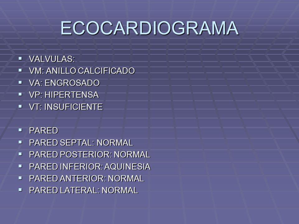 ECOCARDIOGRAMA VALVULAS: VM: ANILLO CALCIFICADO VA: ENGROSADO