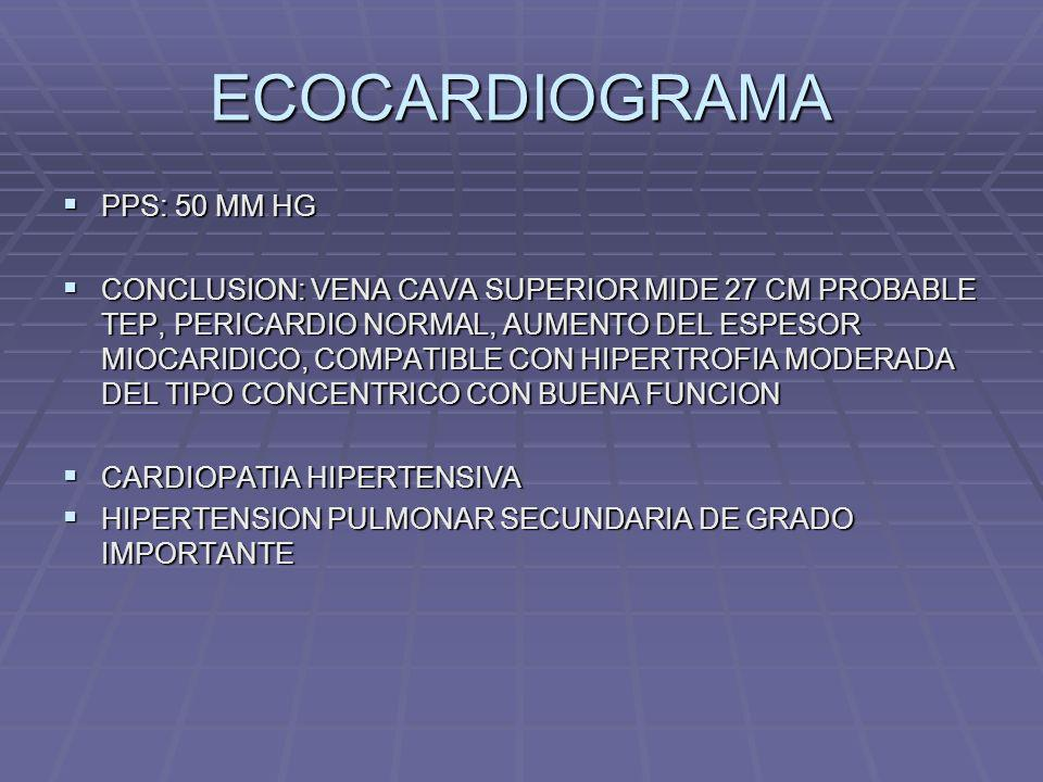 ECOCARDIOGRAMA PPS: 50 MM HG