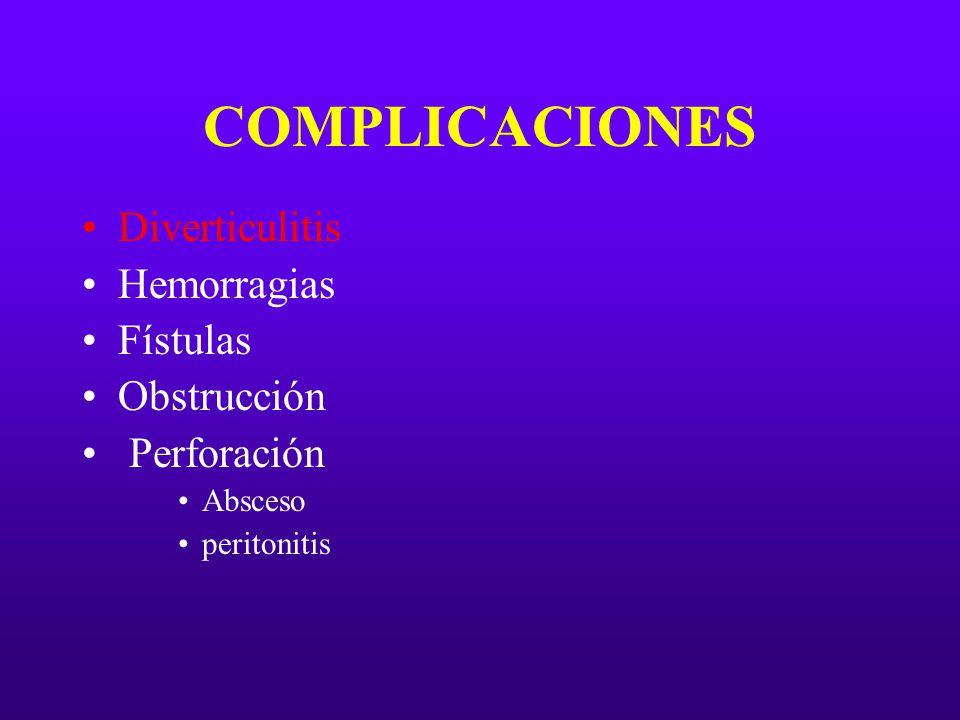COMPLICACIONES Diverticulitis Hemorragias Fístulas Obstrucción