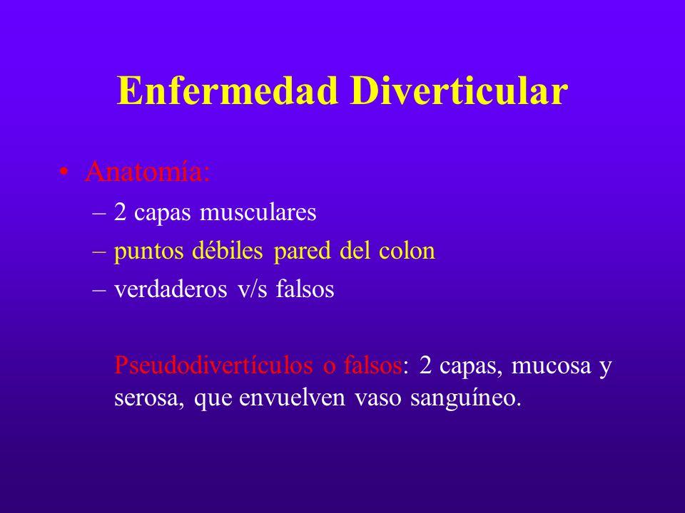 Enfermedad Diverticular