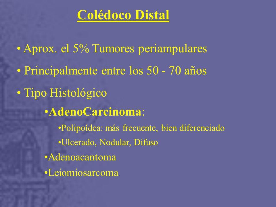 Colédoco Distal Aprox. el 5% Tumores periampulares