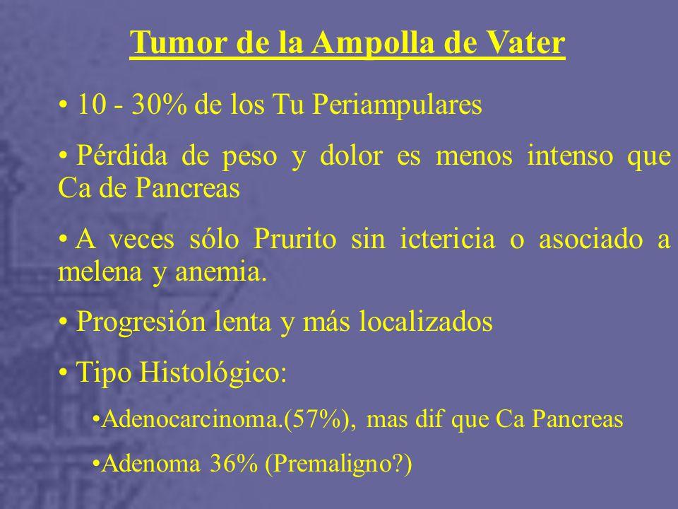 Tumor de la Ampolla de Vater