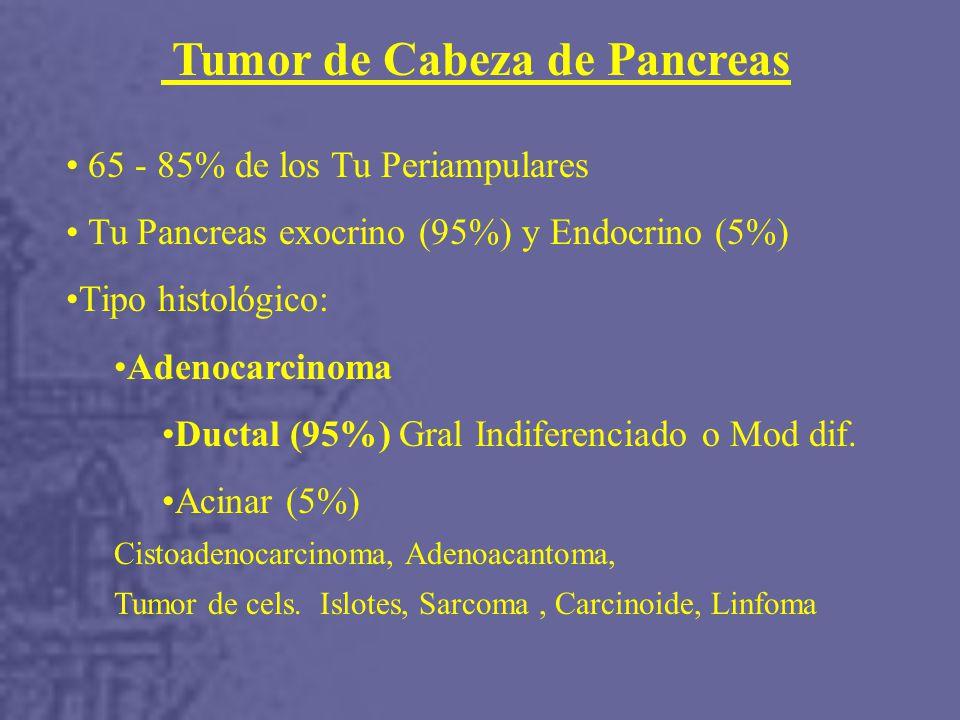 Tumor de Cabeza de Pancreas