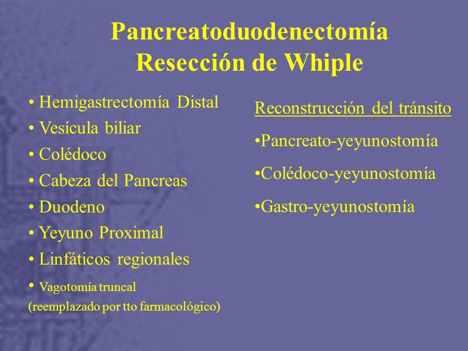 Pancreatoduodenectomía Resección de Whiple