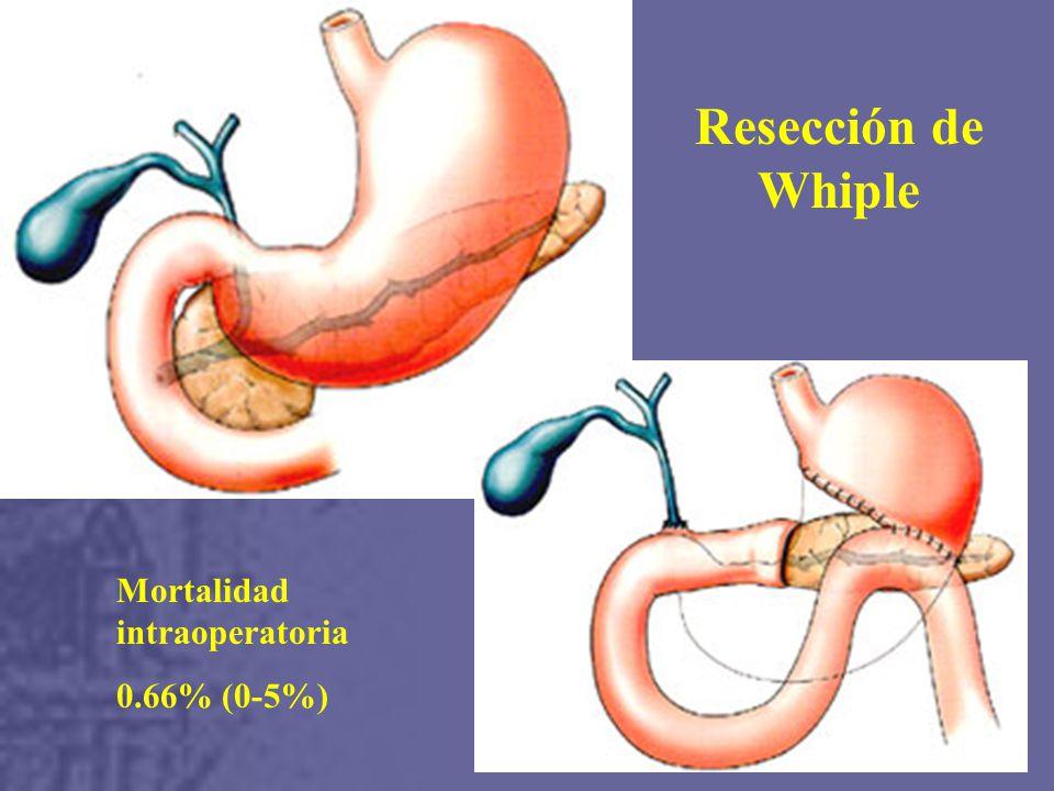 Resección de Whiple Mortalidad intraoperatoria 0.66% (0-5%)