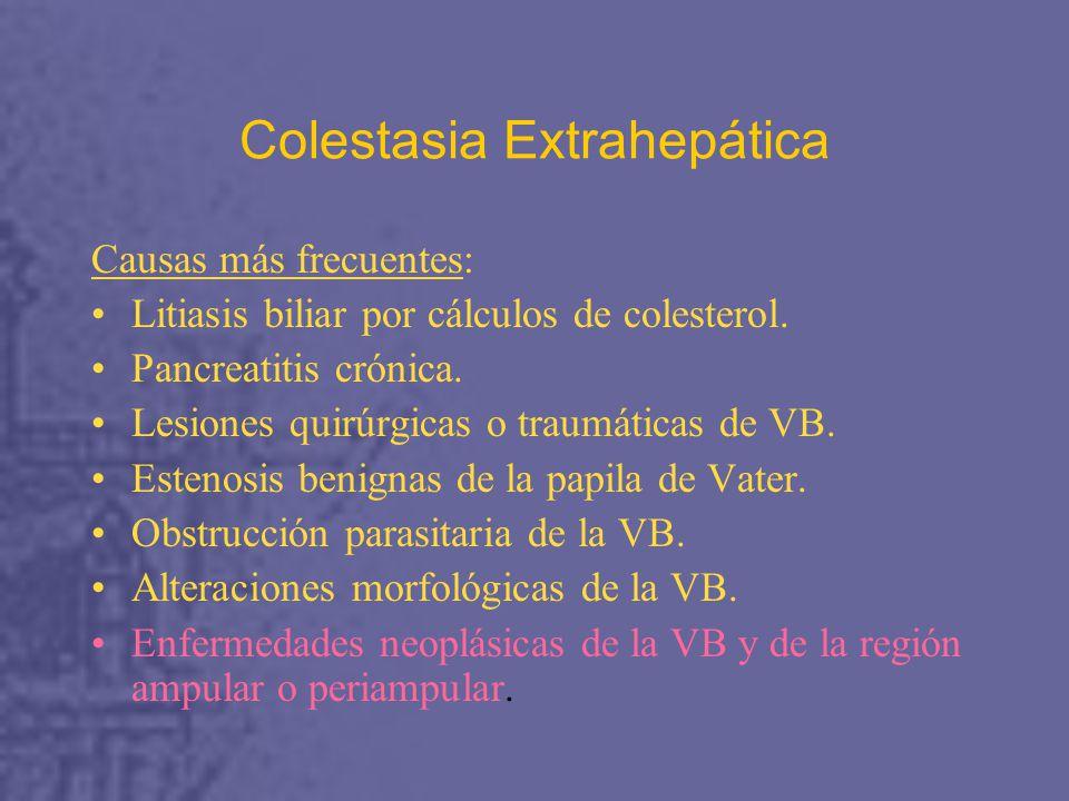 Colestasia Extrahepática