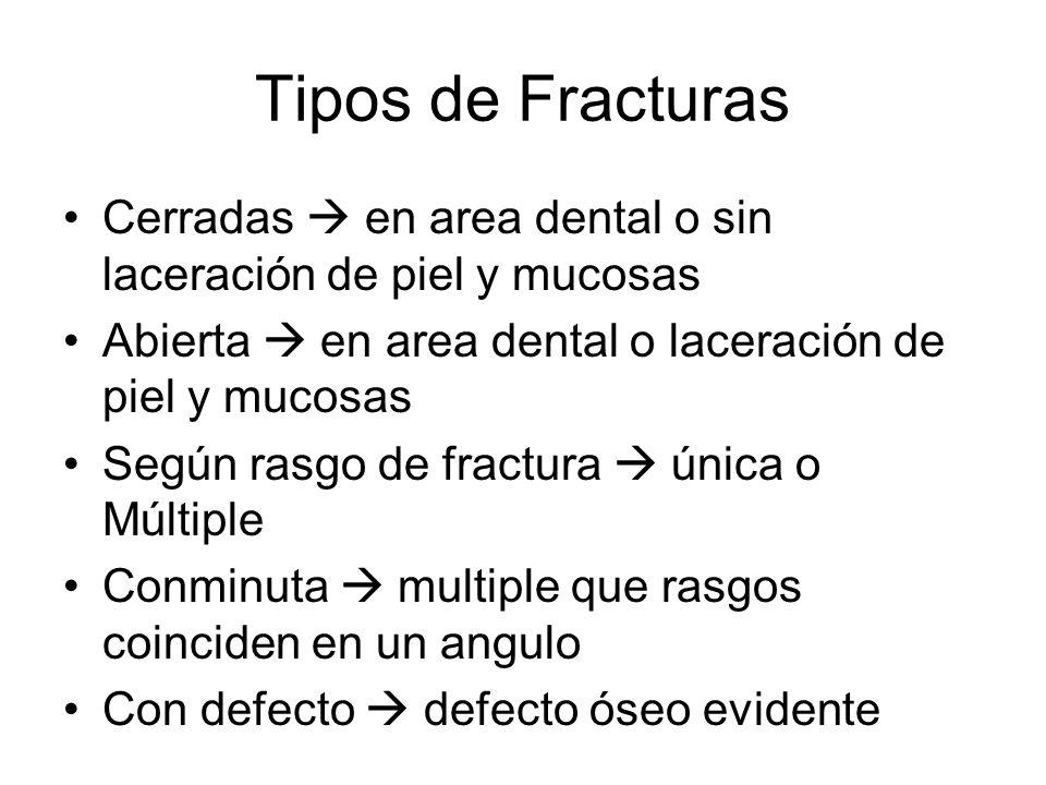 Tipos de Fracturas Cerradas  en area dental o sin laceración de piel y mucosas. Abierta  en area dental o laceración de piel y mucosas.