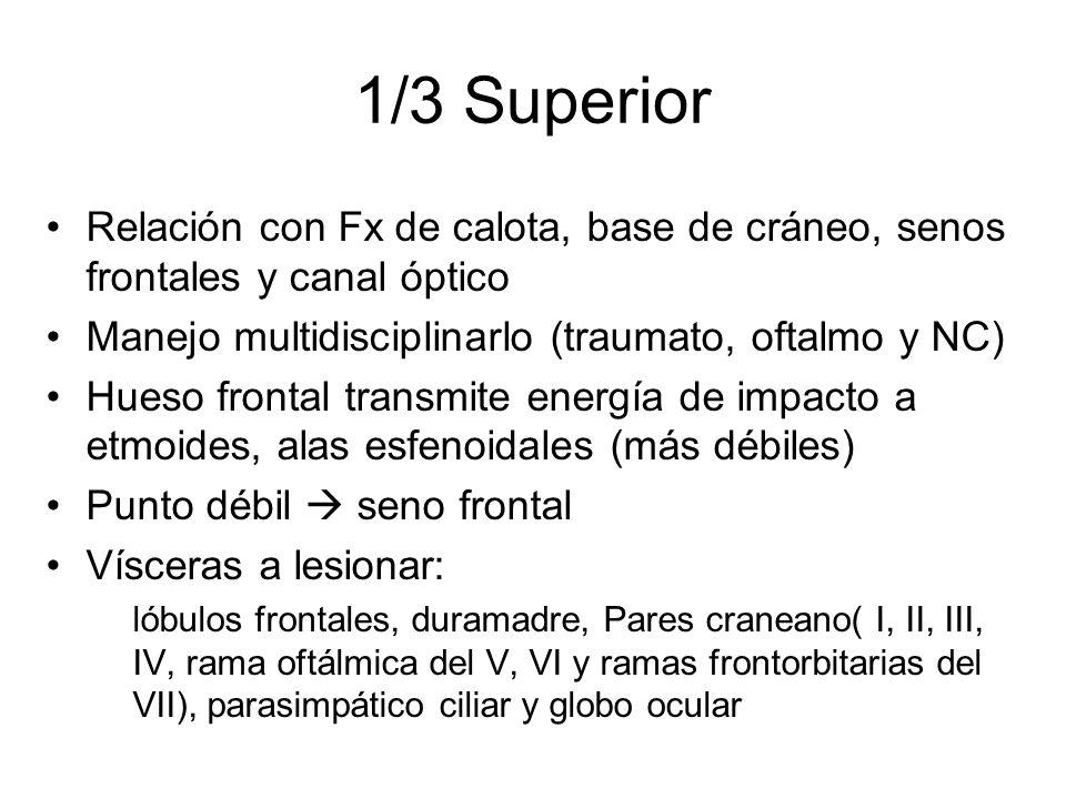 1/3 Superior Relación con Fx de calota, base de cráneo, senos frontales y canal óptico. Manejo multidisciplinarlo (traumato, oftalmo y NC)