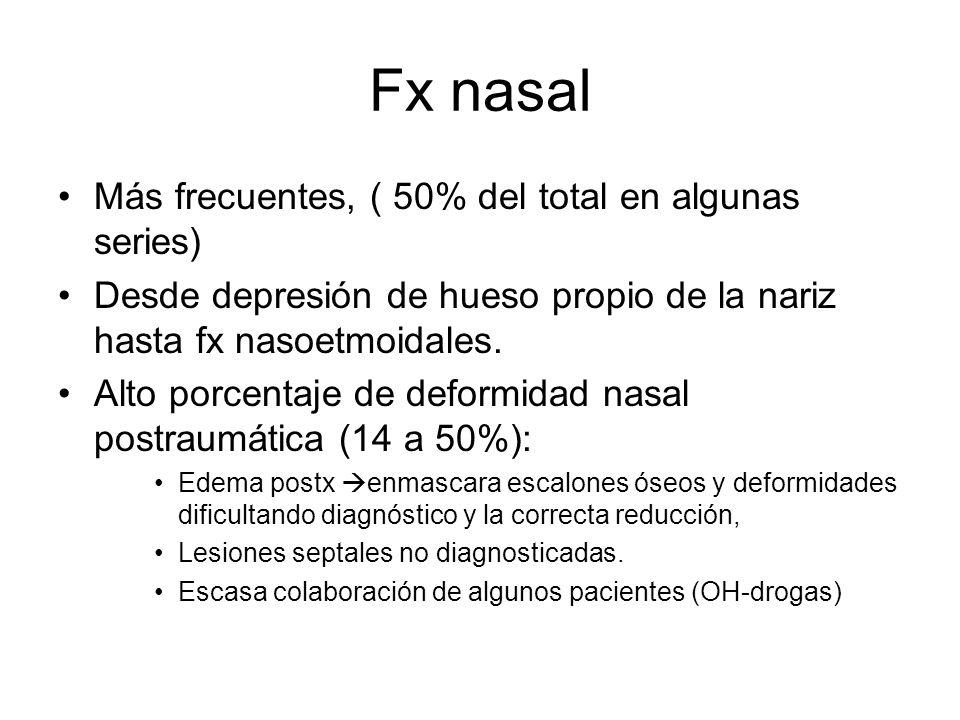 Fx nasal Más frecuentes, ( 50% del total en algunas series)