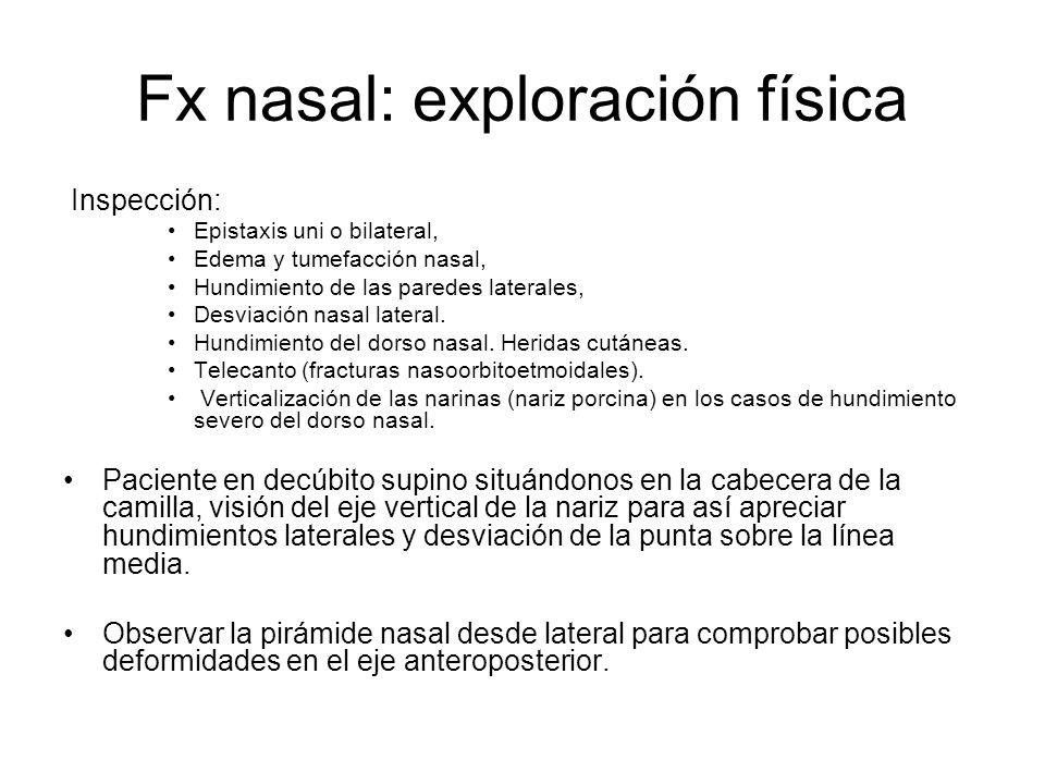 Fx nasal: exploración física