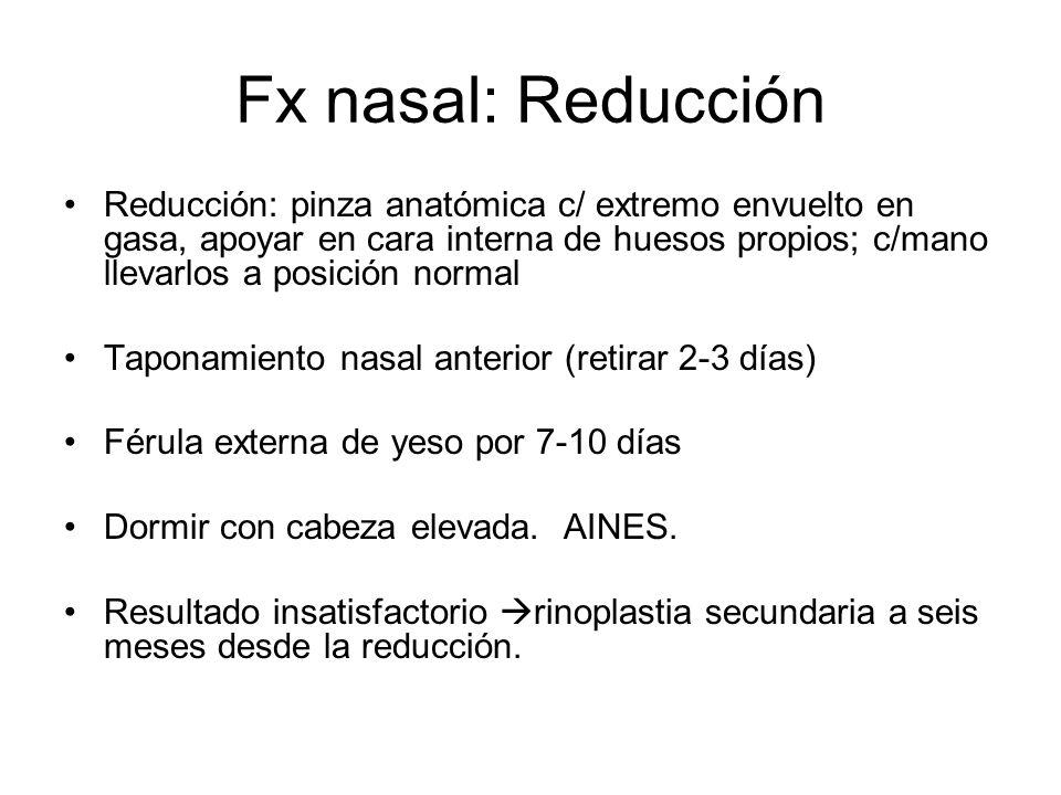 Fx nasal: Reducción