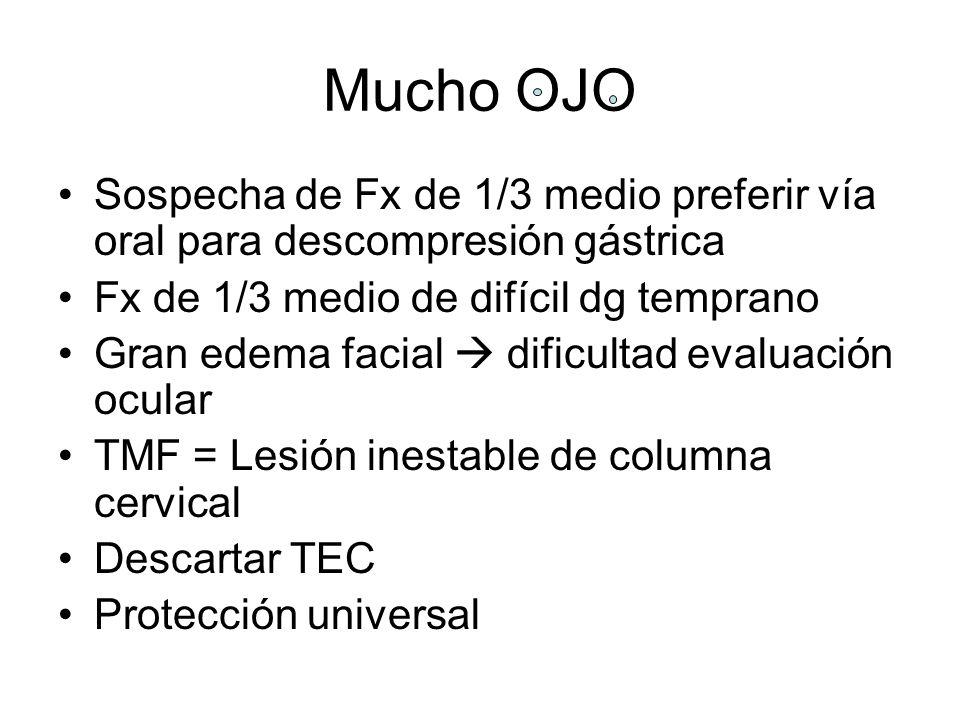 Mucho OJO Sospecha de Fx de 1/3 medio preferir vía oral para descompresión gástrica. Fx de 1/3 medio de difícil dg temprano.