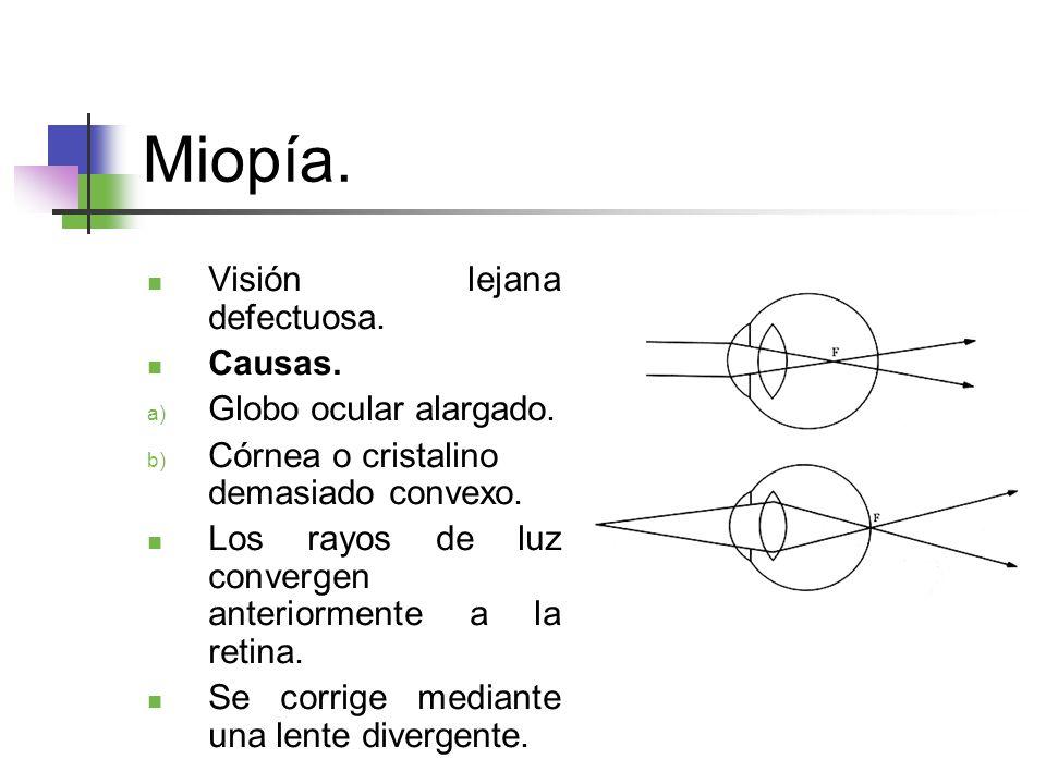 Miopía. Visión lejana defectuosa. Causas. Globo ocular alargado.