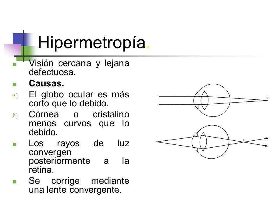 Hipermetropía. Visión cercana y lejana defectuosa. Causas.