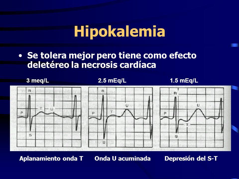 Hipokalemia Se tolera mejor pero tiene como efecto deletéreo la necrosis cardíaca. 3 meq/L 2.5 mEq/L 1.5 mEq/L.