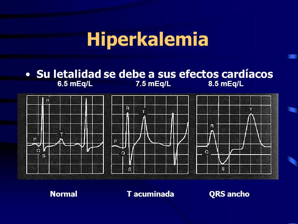 Hiperkalemia Su letalidad se debe a sus efectos cardíacos