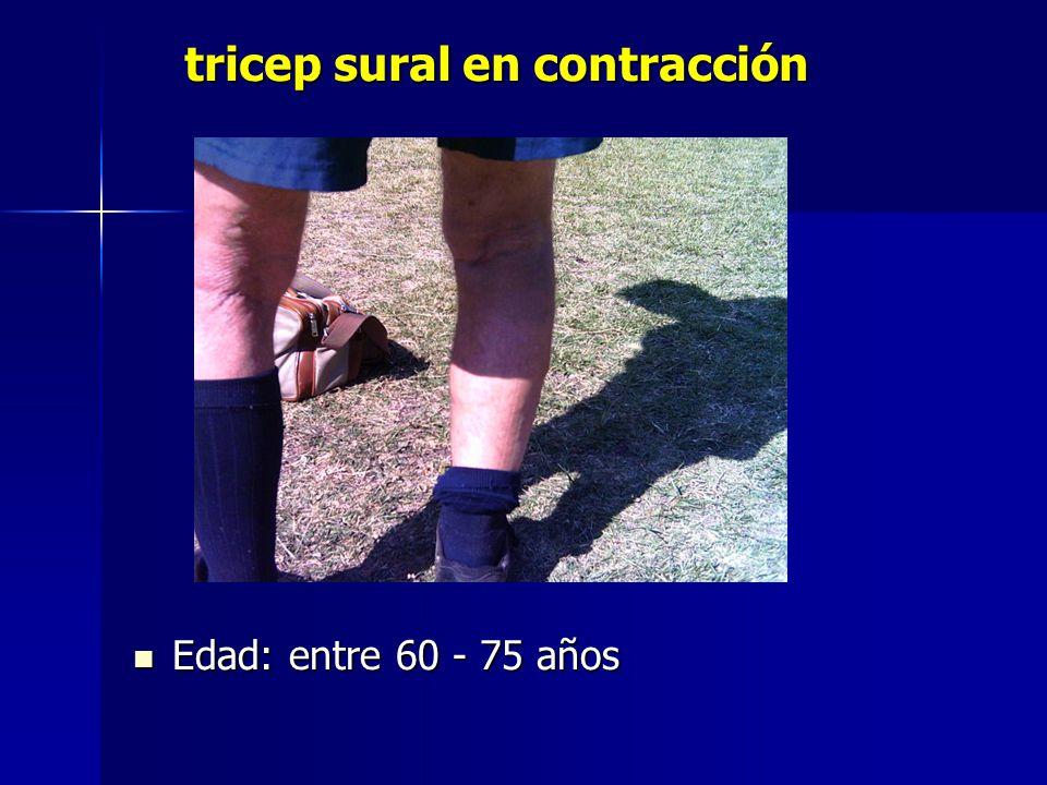 tricep sural en contracción