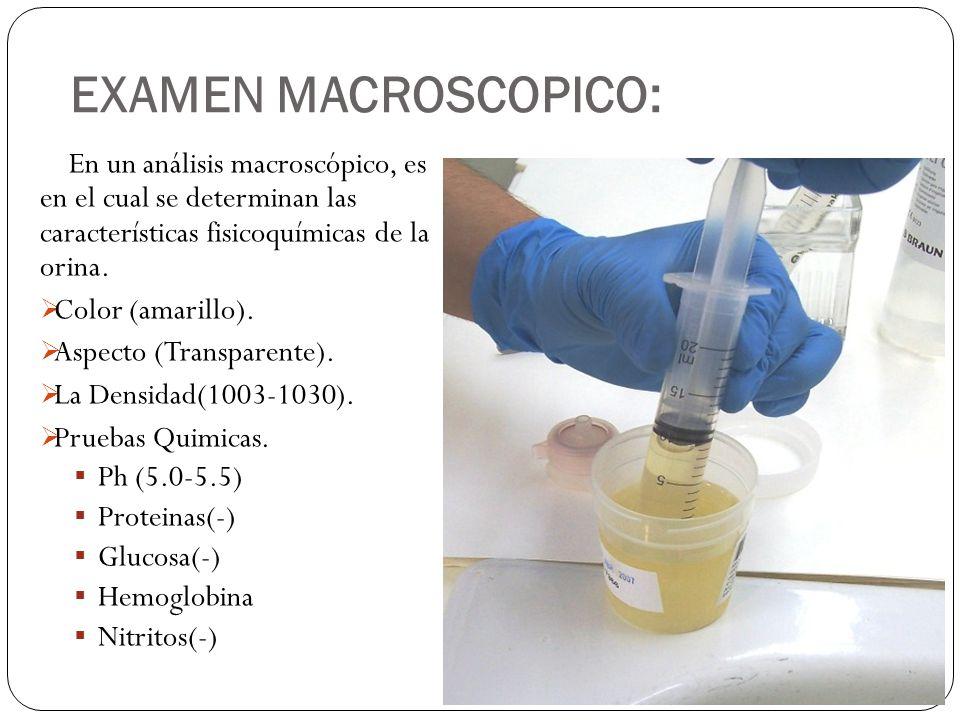 EXAMEN MACROSCOPICO: En un análisis macroscópico, es en el cual se determinan las características fisicoquímicas de la orina.
