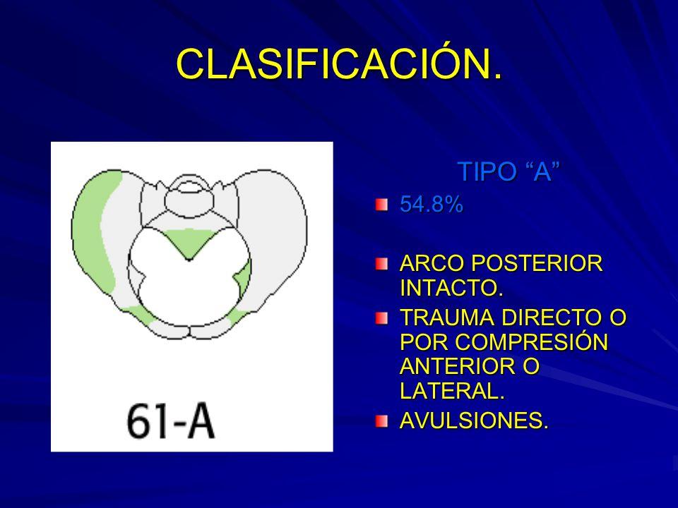 CLASIFICACIÓN. TIPO A 54.8% ARCO POSTERIOR INTACTO.