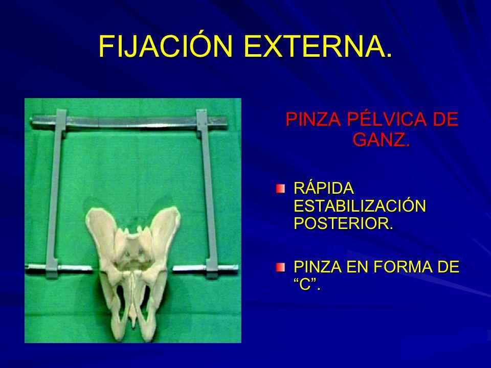 FIJACIÓN EXTERNA. PINZA PÉLVICA DE GANZ.