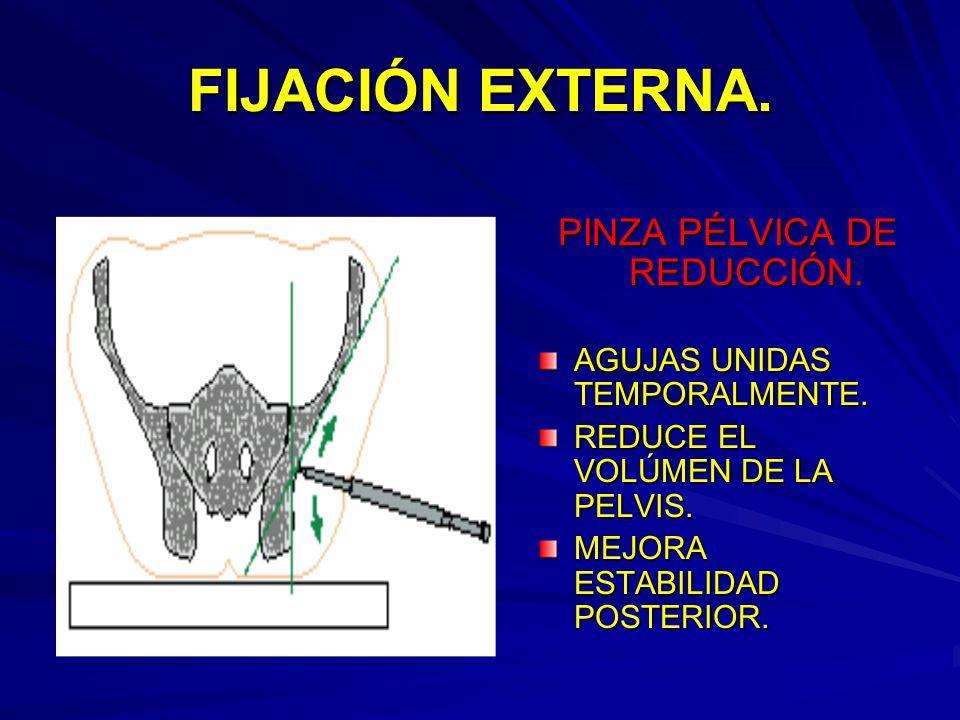 PINZA PÉLVICA DE REDUCCIÓN.