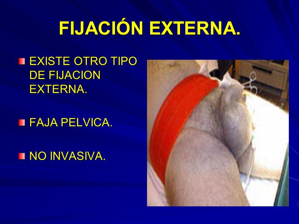 FIJACIÓN EXTERNA. EXISTE OTRO TIPO DE FIJACION EXTERNA. FAJA PELVICA.