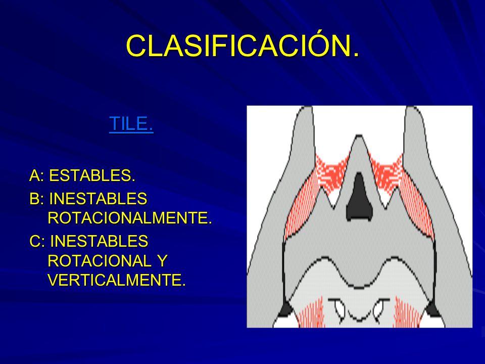 CLASIFICACIÓN. TILE. A: ESTABLES. B: INESTABLES ROTACIONALMENTE.