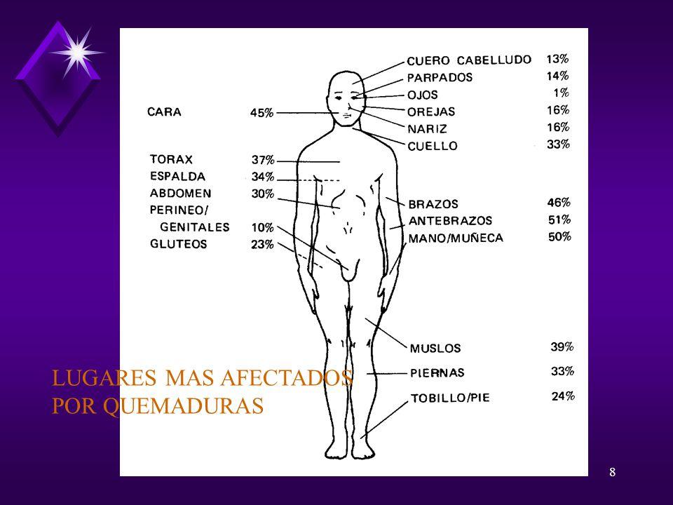 LUGARES MAS AFECTADOS POR QUEMADURAS