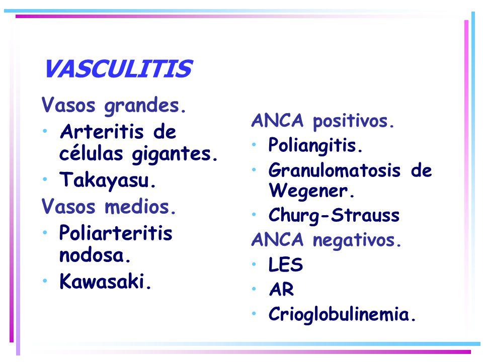 VASCULITIS Vasos grandes. Arteritis de células gigantes. Takayasu.