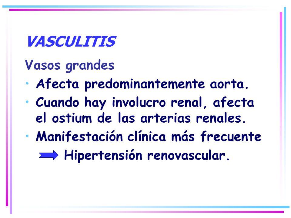 VASCULITIS Vasos grandes Afecta predominantemente aorta.