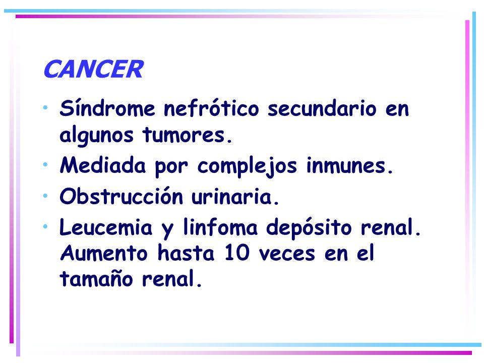 CANCER Síndrome nefrótico secundario en algunos tumores.
