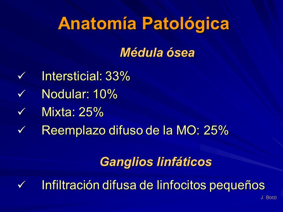 Anatomía Patológica Médula ósea Intersticial: 33% Nodular: 10%