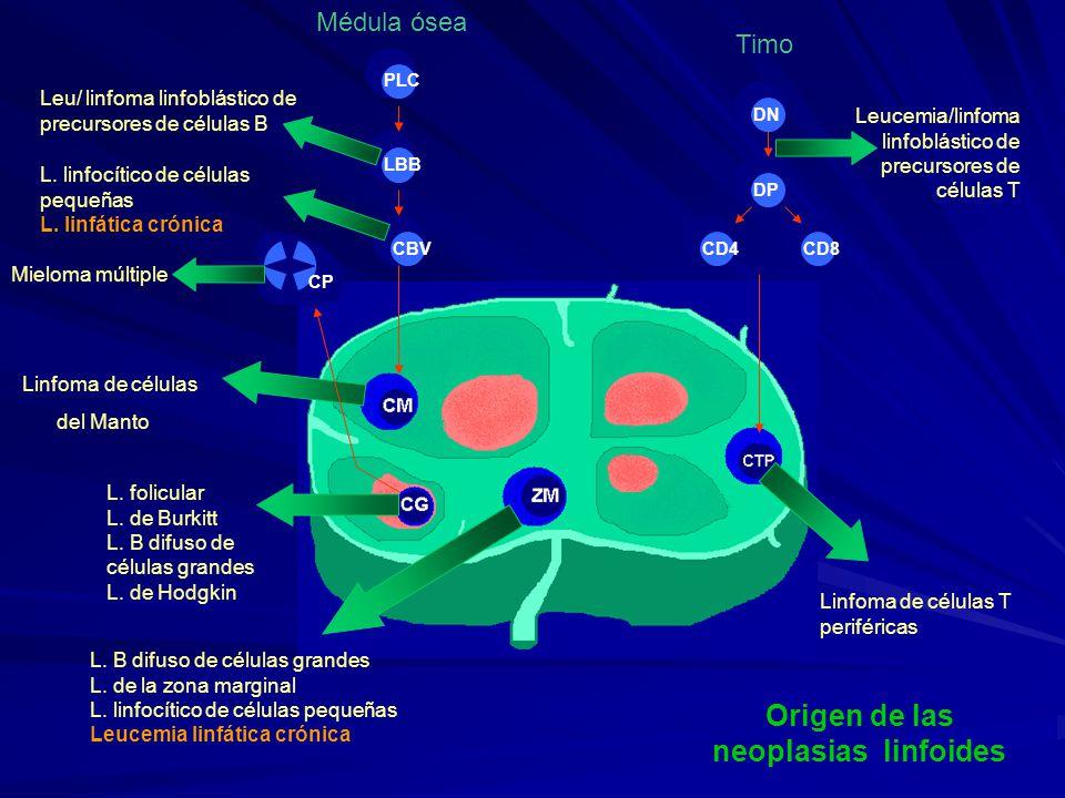 Origen de las neoplasias linfoides