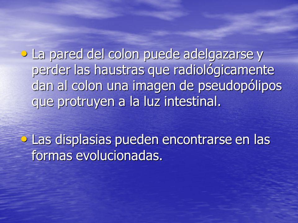 La pared del colon puede adelgazarse y perder las haustras que radiológicamente dan al colon una imagen de pseudopólipos que protruyen a la luz intestinal.