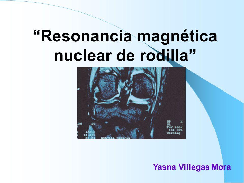 Resonancia magnética nuclear de rodilla