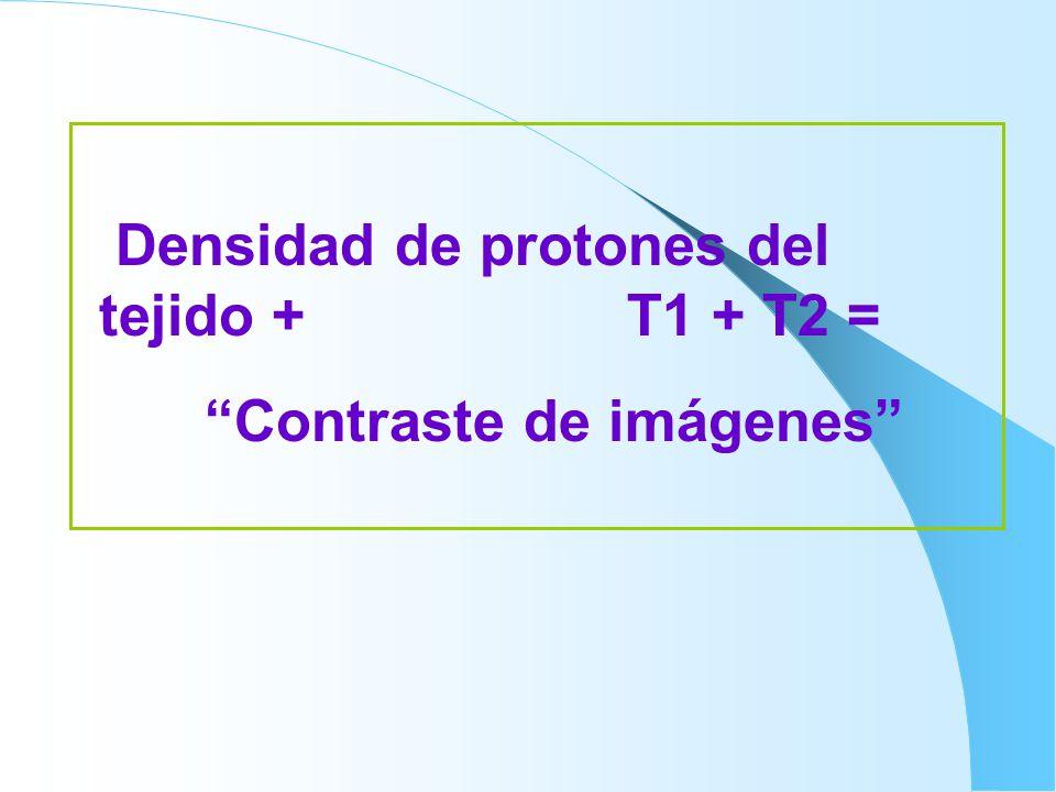 Densidad de protones del tejido + T1 + T2 =