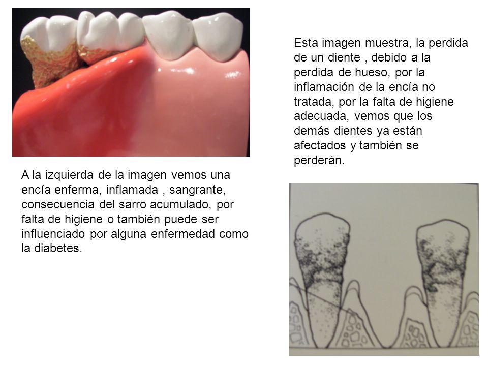 Esta imagen muestra, la perdida de un diente , debido a la perdida de hueso, por la inflamación de la encía no tratada, por la falta de higiene adecuada, vemos que los demás dientes ya están afectados y también se perderán.