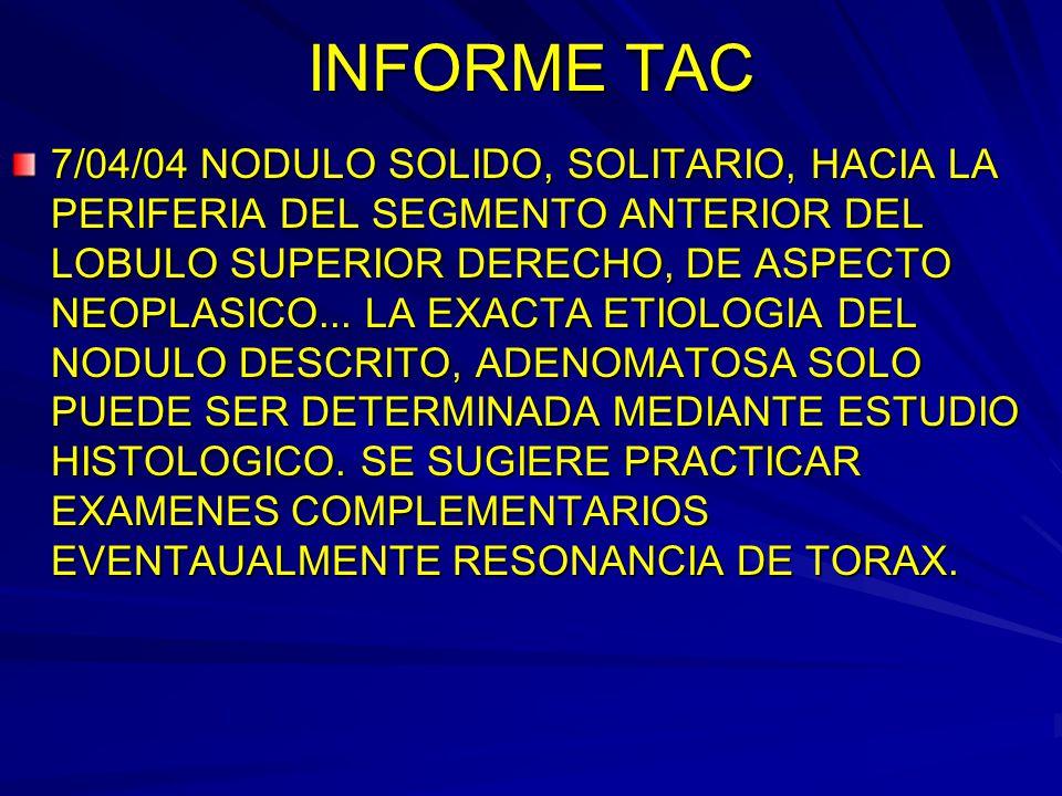 INFORME TAC