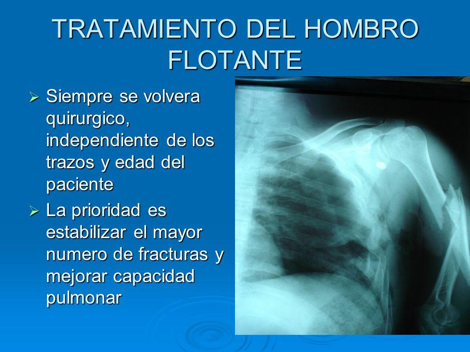 TRATAMIENTO DEL HOMBRO FLOTANTE