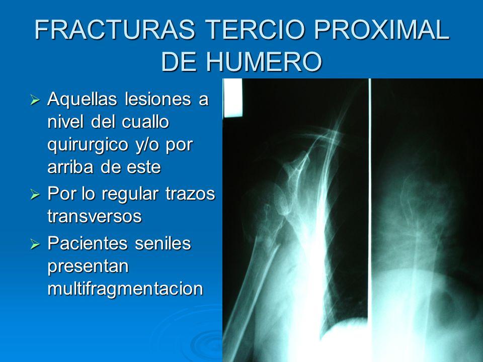 FRACTURAS TERCIO PROXIMAL DE HUMERO