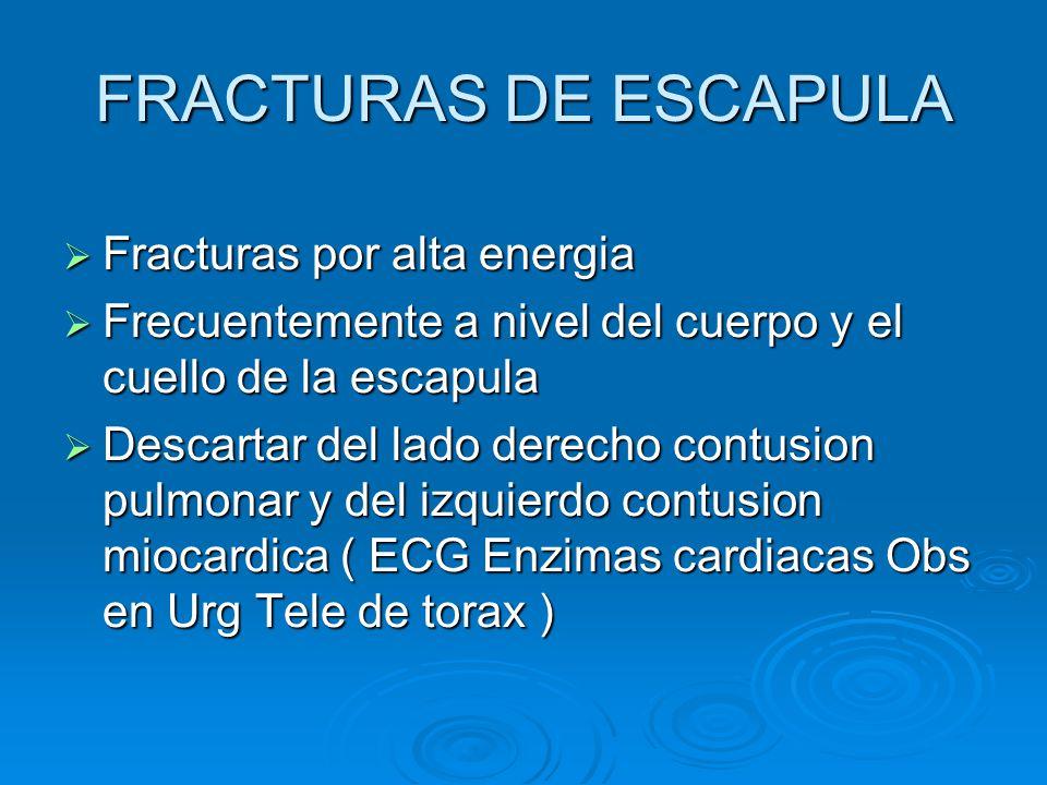 FRACTURAS DE ESCAPULA Fracturas por alta energia