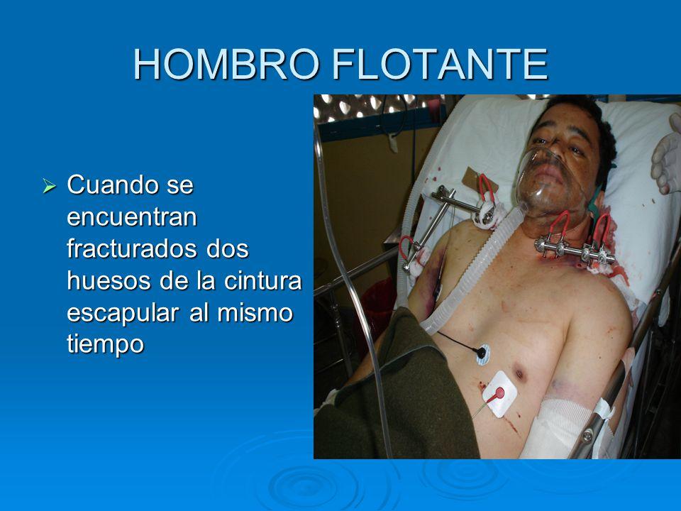 HOMBRO FLOTANTE Cuando se encuentran fracturados dos huesos de la cintura escapular al mismo tiempo