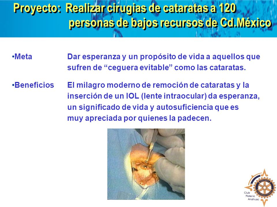 Proyecto: Realizar cirugias de cataratas a 120