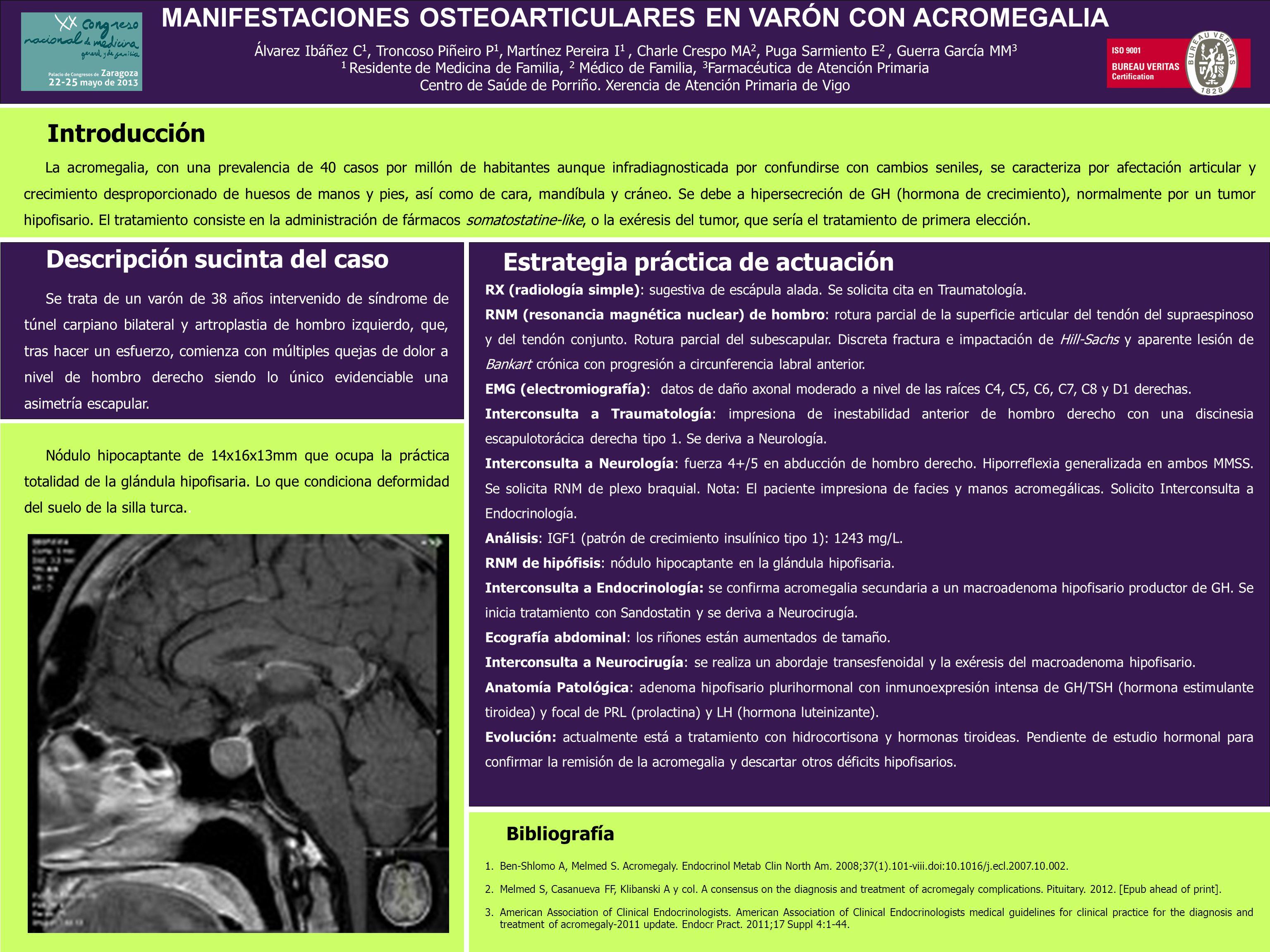 MANIFESTACIONES OSTEOARTICULARES EN VARÓN CON ACROMEGALIA
