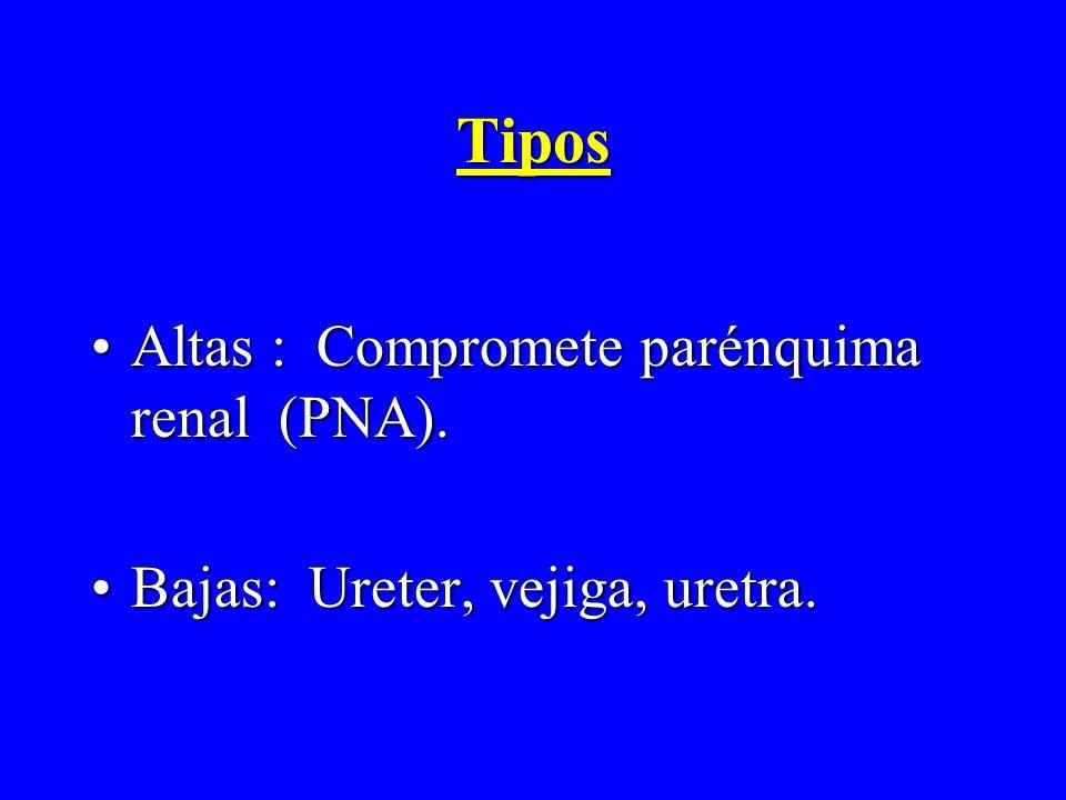 Tipos Altas : Compromete parénquima renal (PNA).