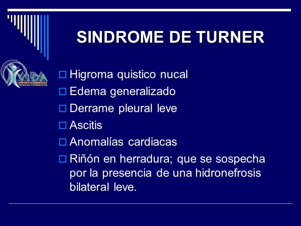 SINDROME DE TURNER Higroma quistico nucal Edema generalizado